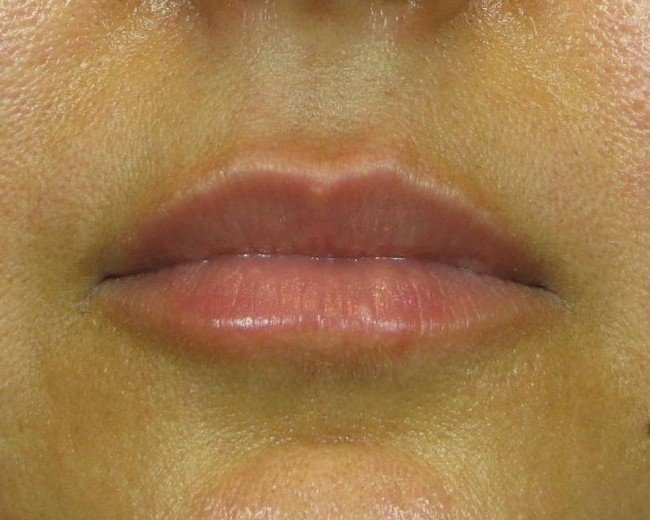 Save on Long Lasting Facial or Lip Fillers With ZendyHealth