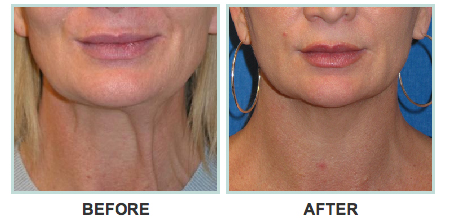 before-and-after-ultherapy