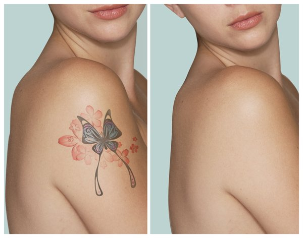 Save with ZendyHealth on Laser Tattoo Removal