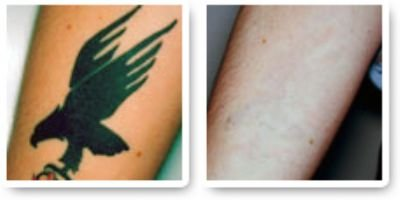 Rise in Tattoo Removal
