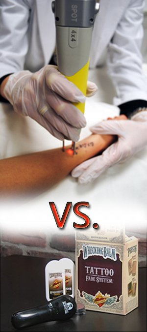 laser-tattoo-removal-vs-wrecking-balm