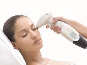 skin-tightening-non-invasive