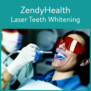 laser-teeth-whitening